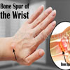 Bone Spur of the Wrist: Symptoms, Treatment, Risk Factors, Complications