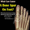 Bone Spur on Side of the Foot: Causes, Symptoms, Treatment, Risk Factors
