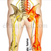 Can A Chiropractor Help A Pinched Sciatic Nerve?