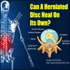 Can A Herniated Disc Heal On Its Own?