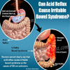 Can Acid Reflux Cause Irritable Bowel Syndrome?