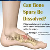 Can Bone Spurs Be Dissolved?