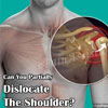 Can You Partially Dislocate The Shoulder?