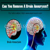 Can You Remove A Brain Aneurysm?