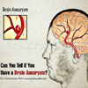 Can You Tell if You Have a Brain Aneurysm?