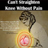 Can't Straighten Knee Without Pain
