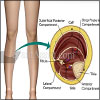 Chronic Compartment Syndrome or Exercise-Induced Compartment Syndrome