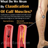 Claudication of Calf Muscles: Causes, Symptoms, Treatment