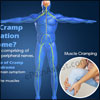 Cramp Fasciculation Syndrome: Causes, Symptoms, Treatment