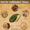 Diet for Gallbladder Stones: Foods to Include & Foods to Avoid for Gallstones