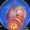 7 Early Warning Signs of COPD?