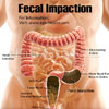 What is Fecal Impaction & How is it Treated?