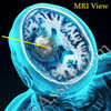 What is Glioblastoma: Symptoms, Treatment, Life Expectancy, Prevalence Rate
