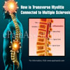 How is Transverse Myelitis Connected to Multiple Sclerosis?