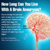 How Long Can You Live With A Brain Aneurysm?