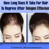 How Long Does It Take For Hair To Regrow After Telogen Effluvium?