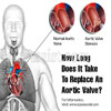 How Long Does It Take To Replace An Aortic Valve?