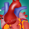 How Serious Is An Enlarged Aorta?