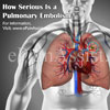 How Serious Is a Pulmonary Embolism?|Risk Factors, Treatment of Pulmonary Embolism
