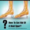 How To Get Rid Of A Heel Spur?