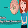 Hypothalamic Amenorrhea: Causes, Treatment, Diagnosis