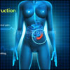 Intestinal Obstruction: Pathophysiology, Causes, Symptoms, Treatment