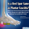 Is a Heel Spur Same as Plantar Fasciitis: Differences Worth Knowing