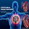 Is PAH The Same as Pulmonary Hypertension?