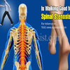 Is Walking Good for Spinal Stenosis?
