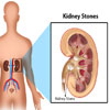 Kidney Stones or Renal Calculus: Types, Risk Factors, Symptoms, Treatment, Investigations