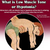 Low Muscle Tone or Hypotonia: Causes, Symptoms, Treatment, Exercises