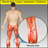 Muscle Tear: Causes, Symptoms, Treatment