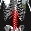 Pathophysiology of Back Pain or Backache: Radicular, Muscular, Facet, Referred, PRS