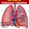 Risk Factors for Pulmonary Embolism or PE?
