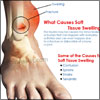 What Can Cause Soft Tissue Swelling and How Is It Treated?
