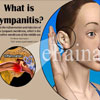 Tympanitis: Causes, Signs, Symptoms, Treatment, Home Remedies