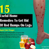 15 Useful Home Remedies To Get Rid Of Red Bumps On Legs
