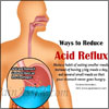 Ways to Reduce Acid Reflux