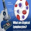 What are Atypical Lymphocytes & How are they Treated?|Causes, Home Remedies for Atypical Lymphocytes