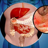 What are the Causes of Colitis & How is It Treated?