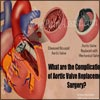 What are the Complications of Aortic Valve Replacement Surgery?