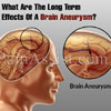 What Are The Long Term Effects Of A Brain Aneurysm?