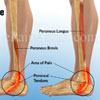 What Are The Presenting Features Of Peroneal Tendonitis?