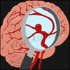 What are the Symptoms Of An Unruptured Brain Aneurysm?