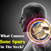 What Causes Bone Spurs in the Neck?