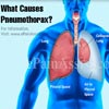 What Causes Pneumothorax?