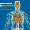 What Do We Mean By Closed Fracture & What is its Treatment, Recovery Period?