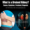 What is a Bruised Kidney: Causes, Symptoms, Treatment, Diagnosis