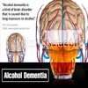 What is Alcohol Dementia: Causes, Symptoms, Stages, Treatment, Complications