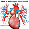 What is an Enlarged Aortic Root?